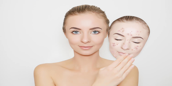 acne-curar